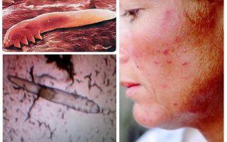 인간의 피하 이가 체와 머리에