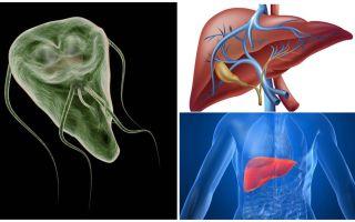 Giardia in the liver - 증상 및 치료