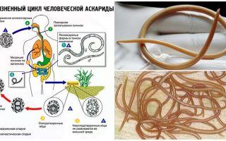 성인의 ascariasis의 증상 및 치료