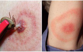 라임 병, 증상, 치료 및 사진이란 무엇입니까?