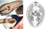 trematodes에 대한 설명