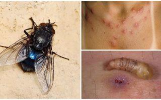 인간의 피부 아래에서 애벌레를 낳는 파리