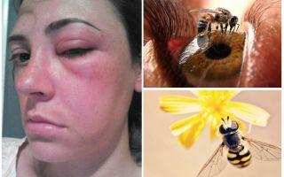 꿀벌이 눈을 가볍게 때리고 부어 오르면 어떻게 될까요?