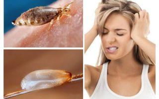 자낭 감염증이란 무엇입니까?