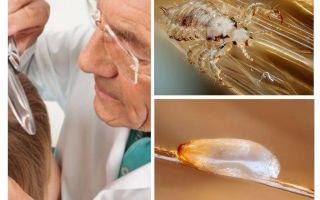 백혈병 환자의 가려움증 검사