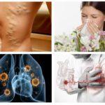 알레르기, 심장병, 결핵