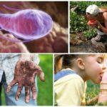 Giardia 감염의 원인